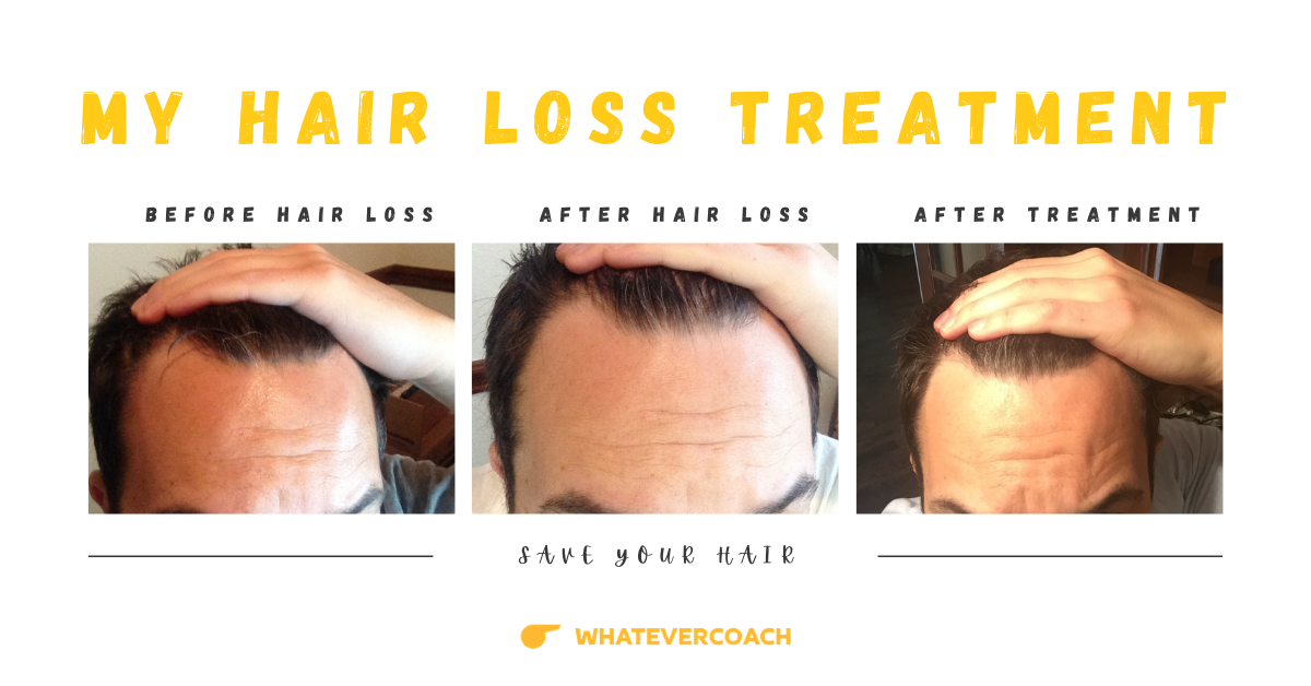 my hair loss treatment