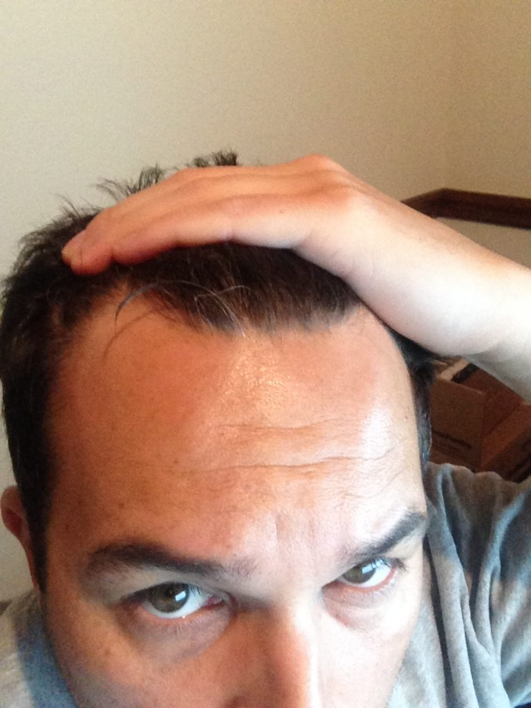Me at the start of male pattern baldness with the front of my hairline starting to show noticeable thinning.
