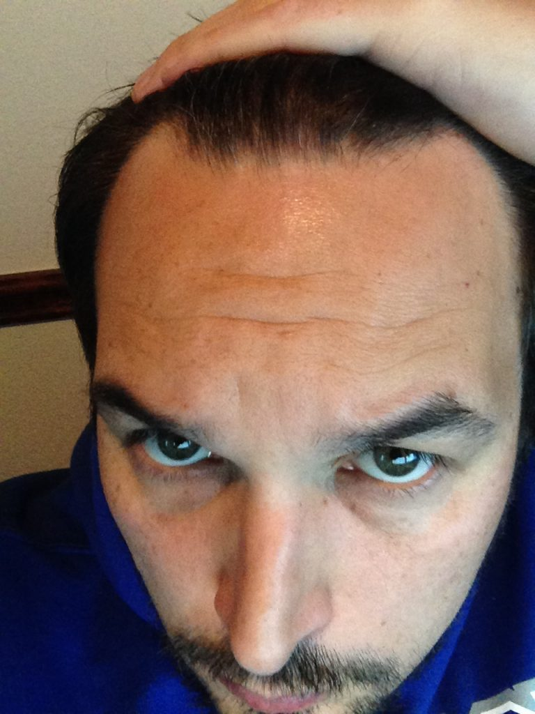 Me 2 months into rapid hair loss from male pattern baldness with my hairline increasingly receding and thinning.