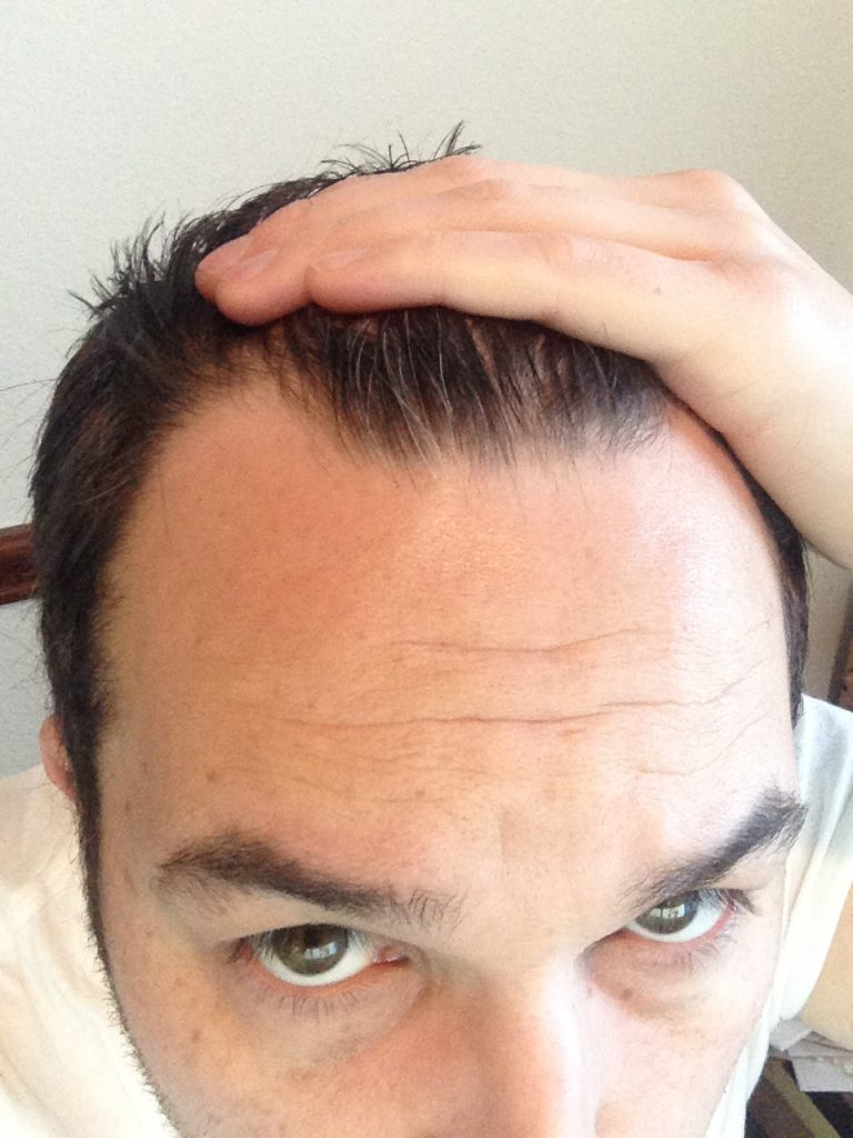 Me 4 months into male pattern baldness with unsightly thinning at the front of my hairline.